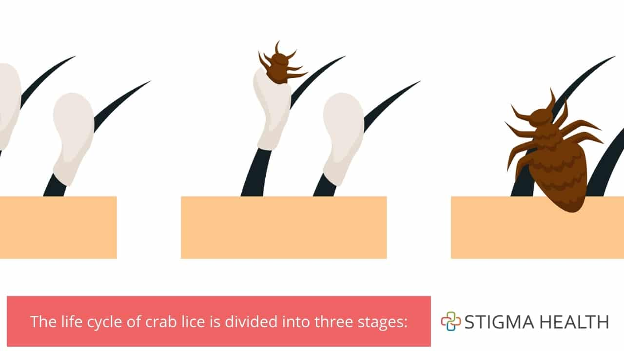 The life cycle of crab lice is divided into three stages