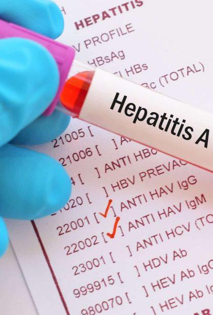 hepatitis a testing newcastle - STD & STI Testing Online - Stigma Health